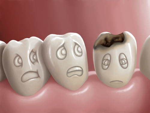 cavities-fillings-roseville-dentist